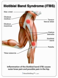 iliotibial-band-syndrome.jpg
